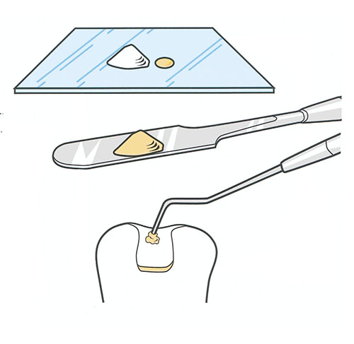 Ledermix mixing diagram