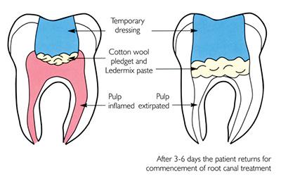 pulpitis diagram